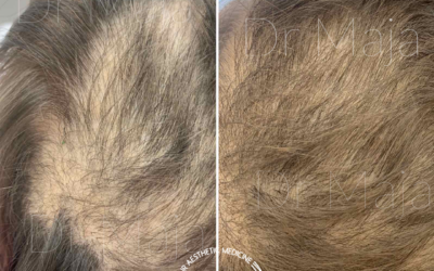 DR.CYJ hair fileri